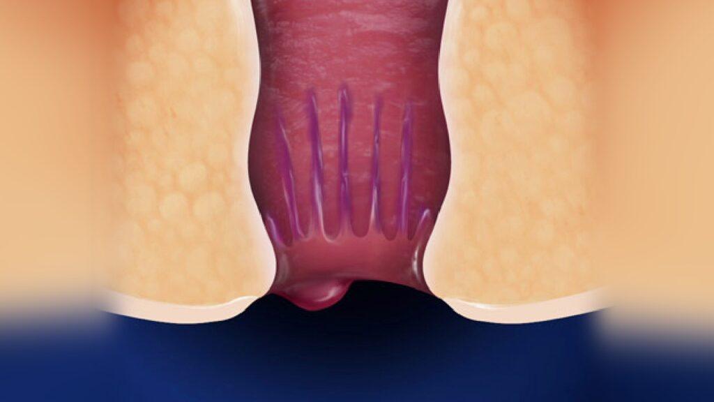 Hemoroid ameliyatı öncesi ve sonrası